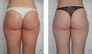 Click Here to Access 8 Week Cellulite Blaster Now